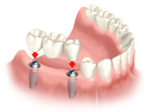 multiple teeth implant