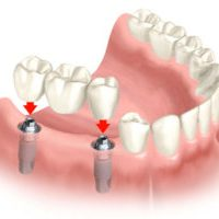 multiple_teeth_implants-2-e1496193817124